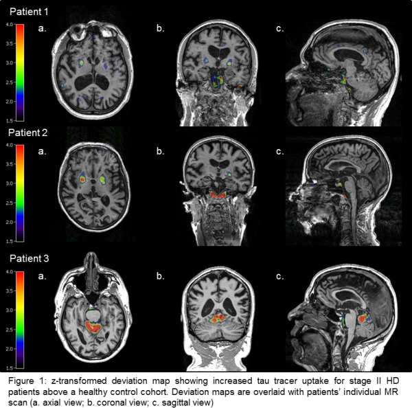 Tau Pathology In Huntington S Disease A Brief In Vivo Pet Imaging Report Mds Abstracts