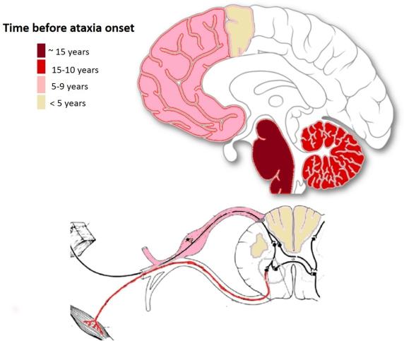 Spinocerebellar ataxia  Wikipedia