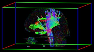White matter microstructural alterations in Huntington